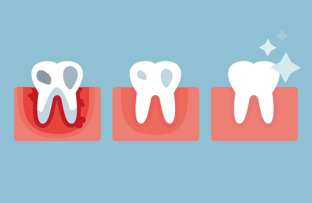 https://www.dr-borkowski.de/wp-content/uploads/2016/09/parodontologie.jpg
